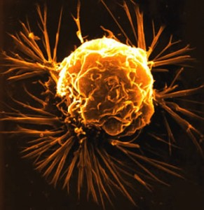 breast cancer cell2 291x300 %photo